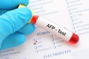 afp test