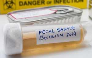 Stool Tests Types Purpose Procedure Result Interpretation