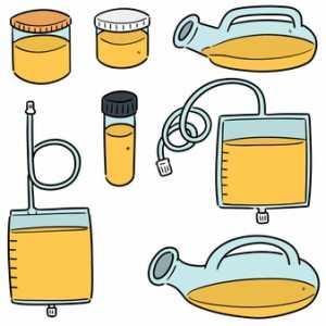urine culture test